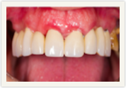 Catonsville Dental Center Dental bridges