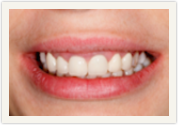 Catonsville Dental Center veneers