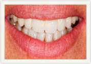 Catonsville Dental Center dental veneers
