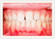 Catonsville, MD teeth whitening